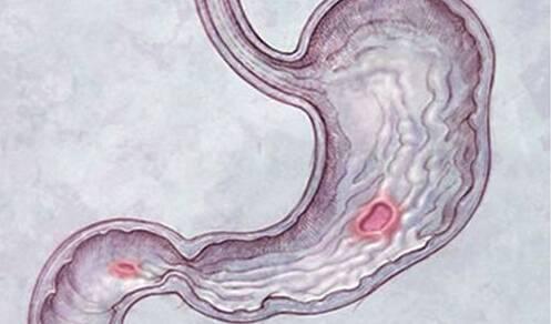胃穿孔急救口诀 胃穿孔的急救方法