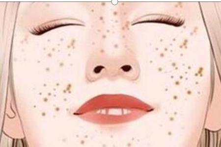 红霉素软膏的作用你知道哪些 红霉素加蜂蜜可以祛斑是真的吗