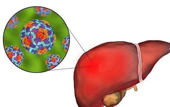 胆红素高是怎么回事有什么危害 胆红素高一般会是什么病?