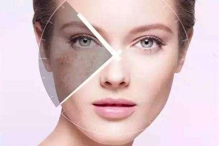 女性脸部长斑点?不同位