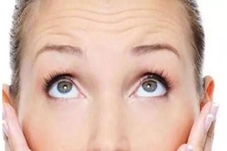 女人抬头纹怎么去除,几个小妙招帮助你