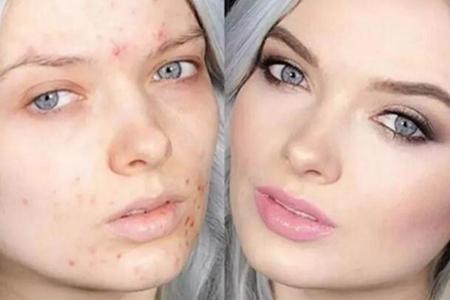 瑕疵肌肤很难搞?这样化妆全部解决,痘痘雀斑黑脸都不见