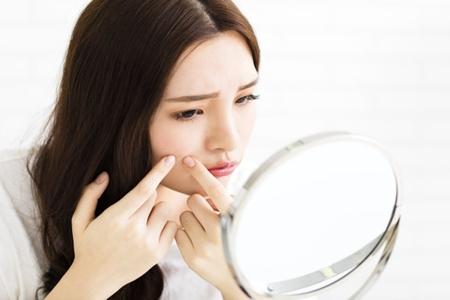 女生脸上长痘,你知道不同部位的原因吗