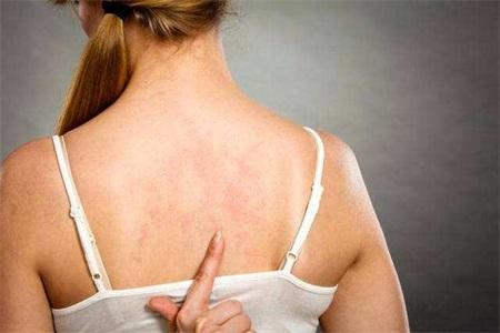 女生背上长痘痘怎么消除?用药方面可选择这些