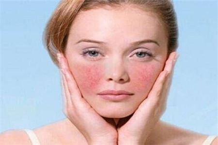 女性碰到敏感肌又愁又急应该怎么办?找对正确护肤方法免烦恼