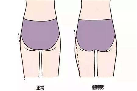 梨形身材怎么穿衣搭配 离不开这三种单品显瘦又苗条