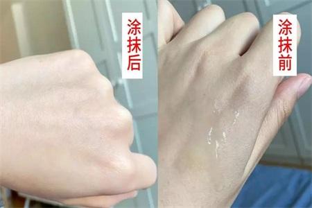 敏感肌肤用什么护肤品?