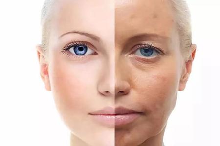 痘痘肌肤、干皮、油皮肤