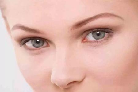 水肿、黑眼圈只是因为没睡好?女性眼部问题潜藏的病症