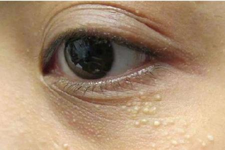 女生长脂肪粒如何去除,粟丘疹的预防方法