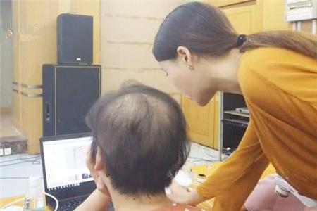 江苏女子脱发只剩30%,白领女性拿什么拯救头发