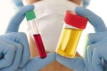 尿酸高怎么治疗 避免引发痛风这一问题患者不能忽视