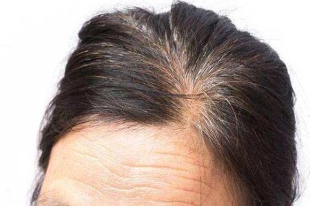 白头发是什么原因引起?女性要当心它也许是肾虚的表现