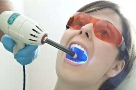 洗牙对牙齿的伤害,女性洗牙后的四个注意事项