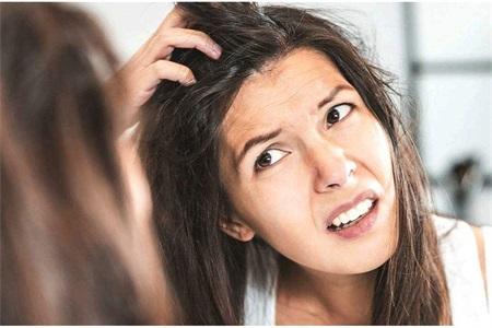 女生脱发、发际线上移、出油怎么办?头发护理要有针对性