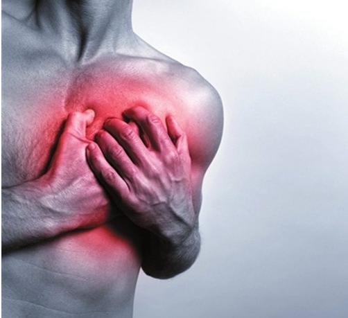 心肌梗塞死亡的一大元凶也是高血压