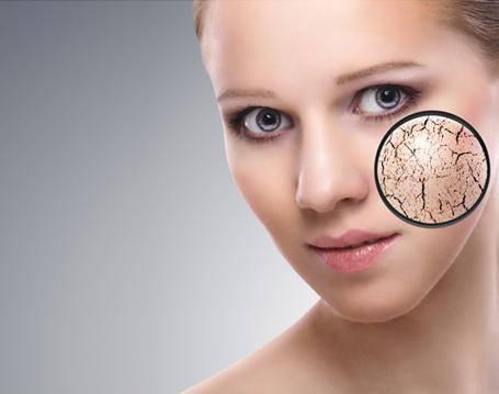 皮肤缺水干燥怎么办 如何保养