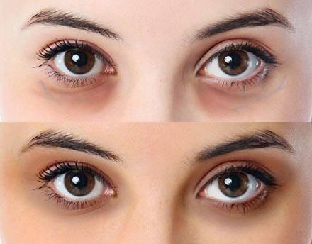如何改善黑眼圈 教你快
