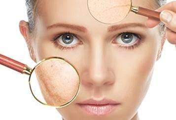 脸部皮肤过敏怎么办 教你几个小方法