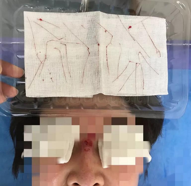女子鼻子起个脓包 手术后竟然取出十条线