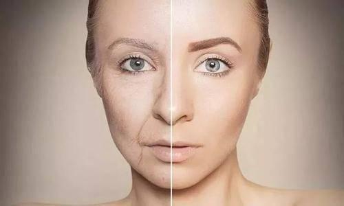 如何预防皮肤松弛 这些