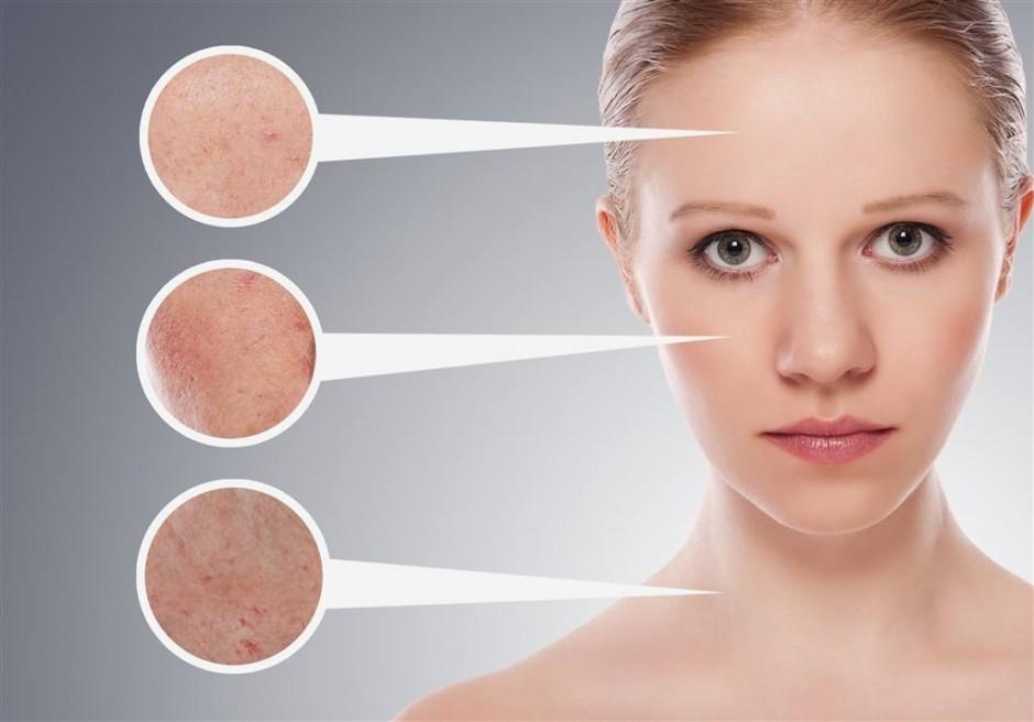 女生常见的肌肤问题有哪