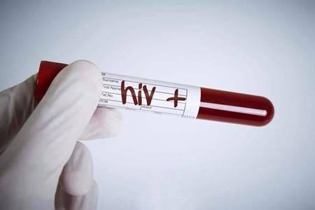 艾滋病并没有初期症状,如何预防艾滋病要记住这一点