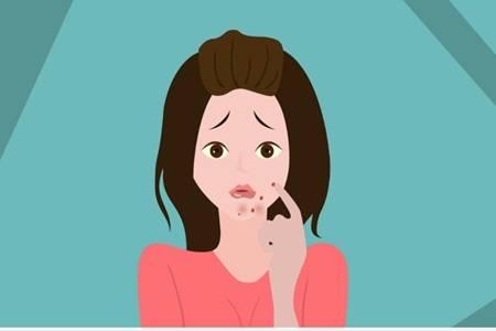 女生下巴长痘的原因,教你六个诀窍简单祛痘