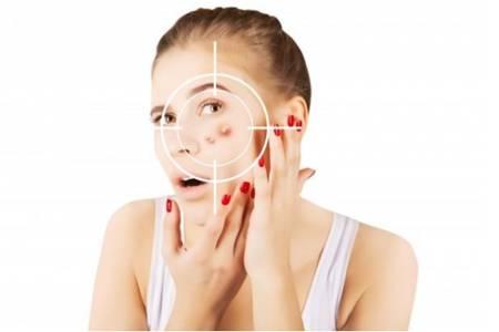 脓包型痤疮的护理方法,教你六招修复皮肤