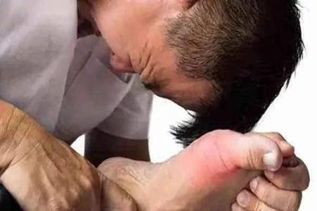 痛风的症状容易被人忽视,出现关节炎一定不能大意