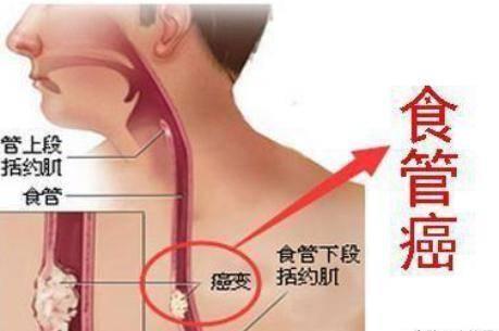 食管癌早期症状