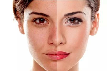 光子嫩肤的危害缺陷,医美光子嫩肤术后的注意事项