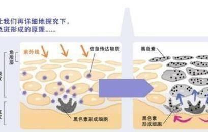 激光祛斑的危害与效果
