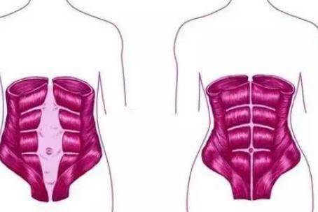 盆底肌修复