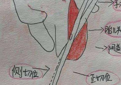 什么是侧切?会阴侧切术让无数产妇恐惧的原因