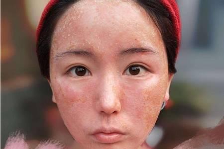 激素脸有哪些症状