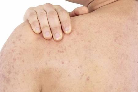 鸡皮肤的四大形成原因,如何消除鸡皮肤光滑肌肤