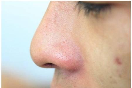 成人湿疹怎么治好得快,湿疹止痒不留疤的六个小妙招