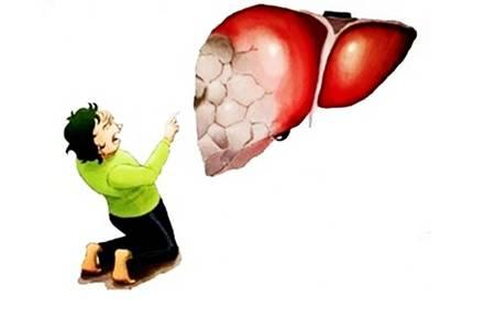 脂肪肝如何治疗和调养,脂肪肝患者要做这五件事情