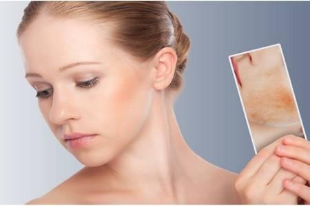 皮肤过敏症状有哪些,女性皮肤初期过敏如何治疗