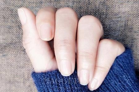 指甲上有竖纹是怎么回事 四个产生竖纹的原因