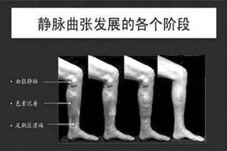静脉曲张的危害有哪些 静脉曲张的治疗方法有哪几种