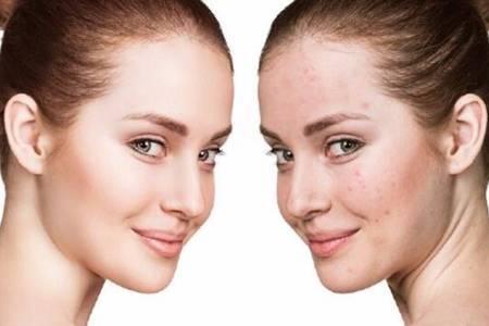 暗疮和痤疮的区别是什么  痤疮的东西挤出来皮肤会变好吗