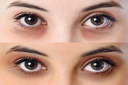 女人天生黑眼圈怎么回事  为什么天生黑眼圈可以做手术吗