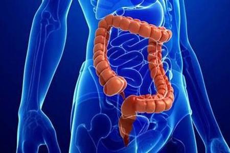 慢性结肠炎的症状有哪些  慢性结肠炎吃什么药效果最好