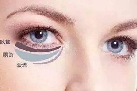 眼袋下垂怎么办什么原因导致的  眼袋下垂莫慌2个方法快速改善大眼袋