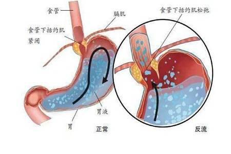 慢性胆汁反流性胃炎是怎么回事 反流性胃炎的症状及治疗方法大全