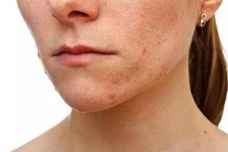 脸部毛孔堵塞怎么疏通   疏通毛孔堵塞最有效的3个方法介绍