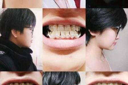 地包天牙不齐怎么办  做矫正牙齿最便宜要多少钱