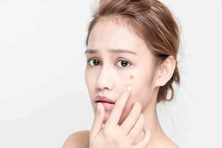 白头粉刺的形成原因是什么  脸上长白头粉刺怎么办该如何治疗